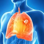 les effets irréversibles du tabac sur les poumons